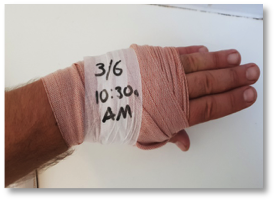 Bandaged hand with time and date details